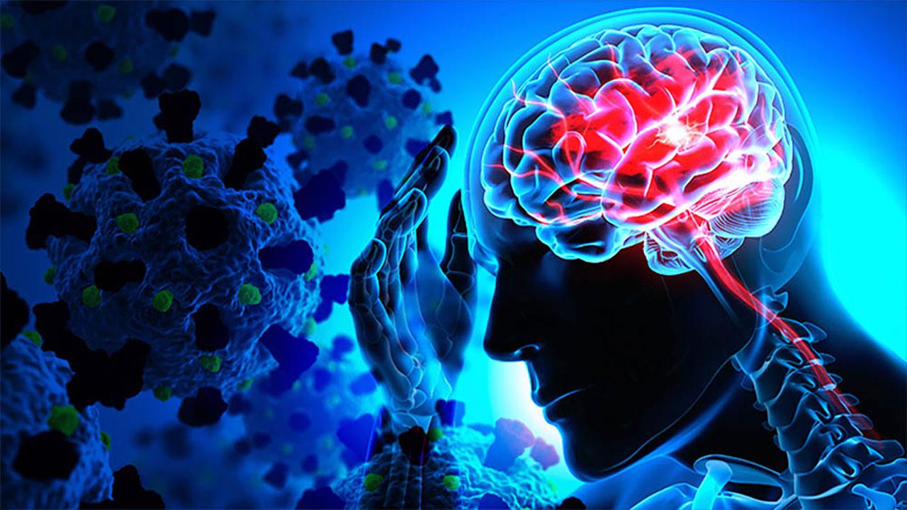 Covid-19'da Nörolojik Tutulumu